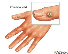 pictures of warts pic picture plantar