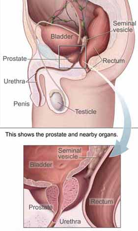 Prostate Swelling http://www.natural-remedies-review.com/enlarged-prostate.html