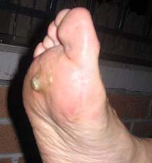 pictures of warts pic picture plantar feet